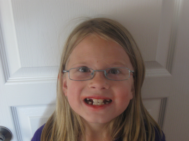 Diana got some teeth extracted