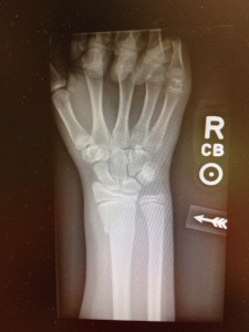 The X-ray of the broken wrist.  Now off to the ER to have the bone reduced.